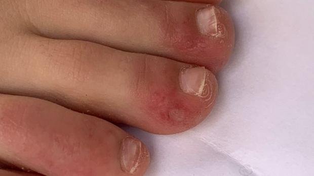 "Watford Observer: ""Covid toe"" is a rash that can look like chilblains. Credit: COVID-PIEL STUDY"