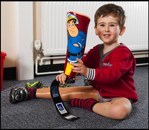 Disabled boy receives prosthetic blade